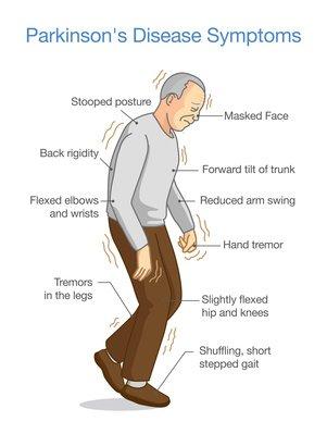 Parkinson's Disease Symptoms. Illustrat