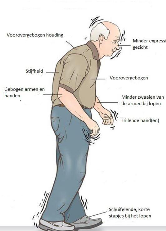 Parkonson symptomen