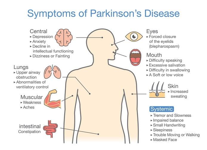 Parkinson's disease symptoms